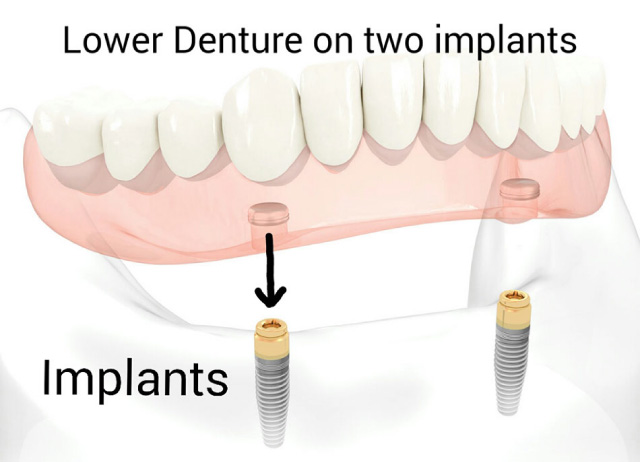 A diagram of the dental implants we offer in Kingston